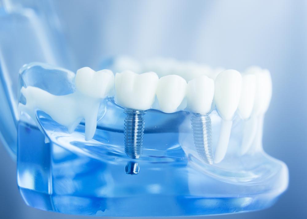 Was kosten Zahnimplantate?