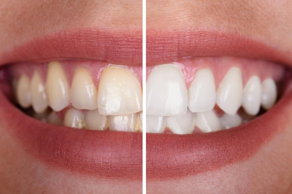 Strahlend weiße Zähne – was kostet Bleaching?