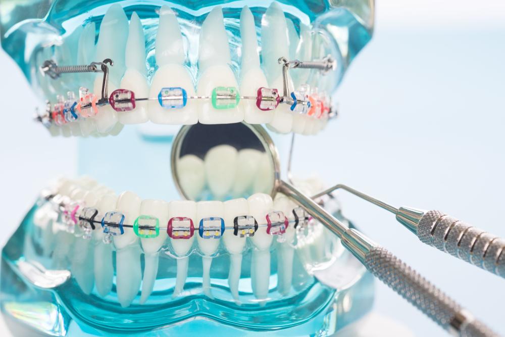 Was kostet eine feste Zahnspange?