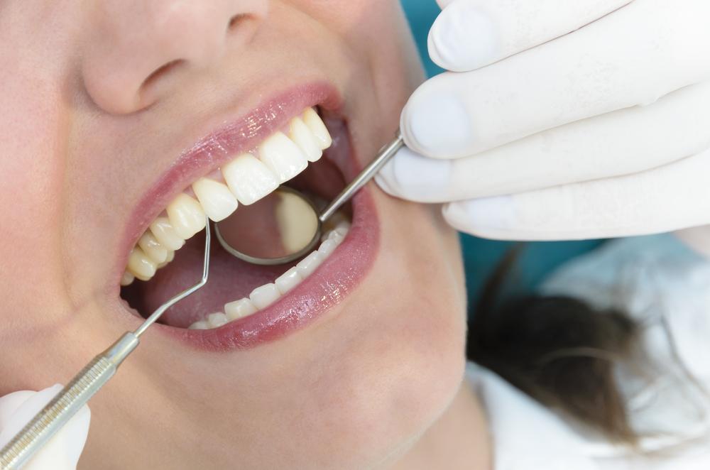 Welche Kosten kommen durch eine Parodontosebehandlung auf mich zu?