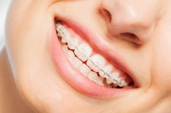 unsichtbare-zahnspange-kosten