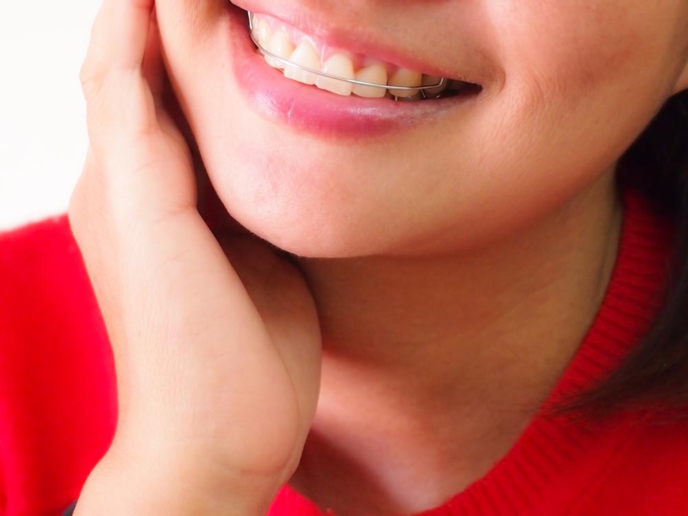 Welche Kosten entstehen durch eine lose Zahnspange?