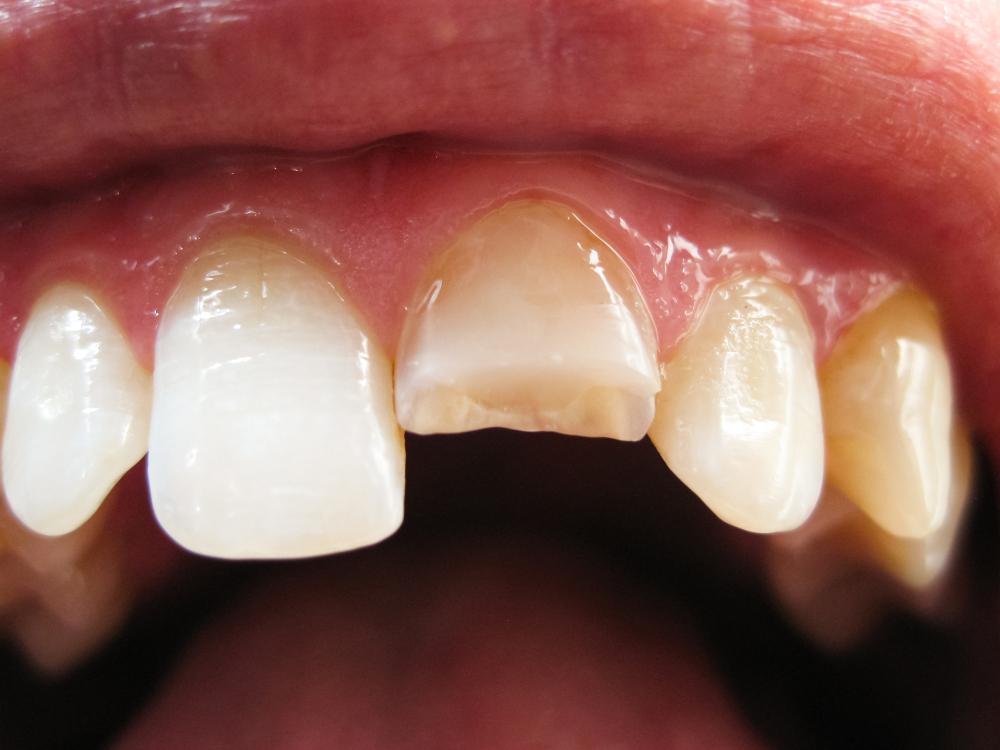 Welche Kosten verursacht ein abgebrochener Zahn?