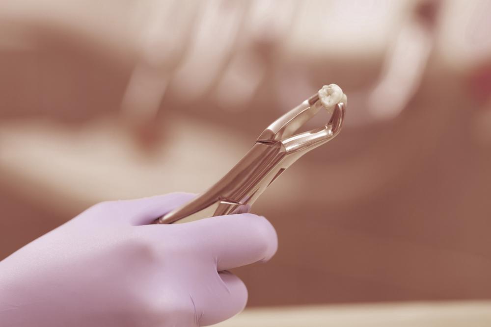 Was kostet es, einen Zahn ziehen zu lassen?