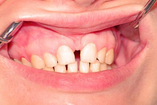 Schneidezähnen zwischen grosse zahnlücke den Zahnlücke mit