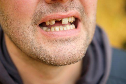 Was tun gegen zahnlücke vorne