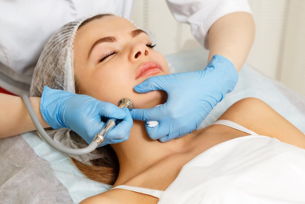 Was kostet eine Dermabrasion der Haut?