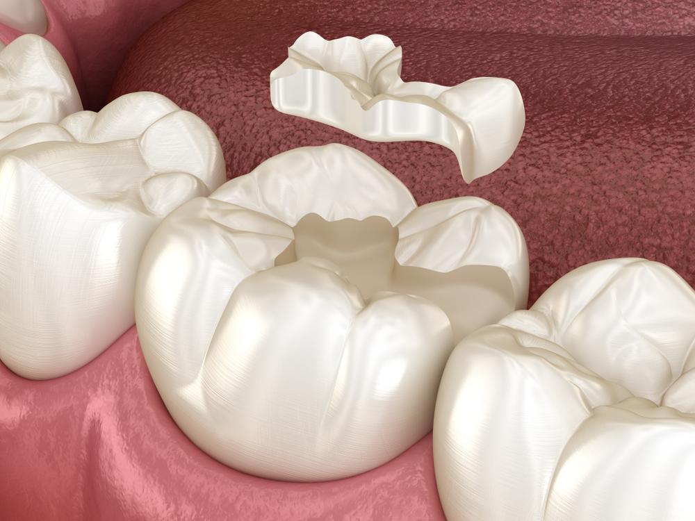 Schaden am Zahn: Was kostet ein Inlay?