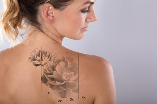 tattoo-lasern-kosten
