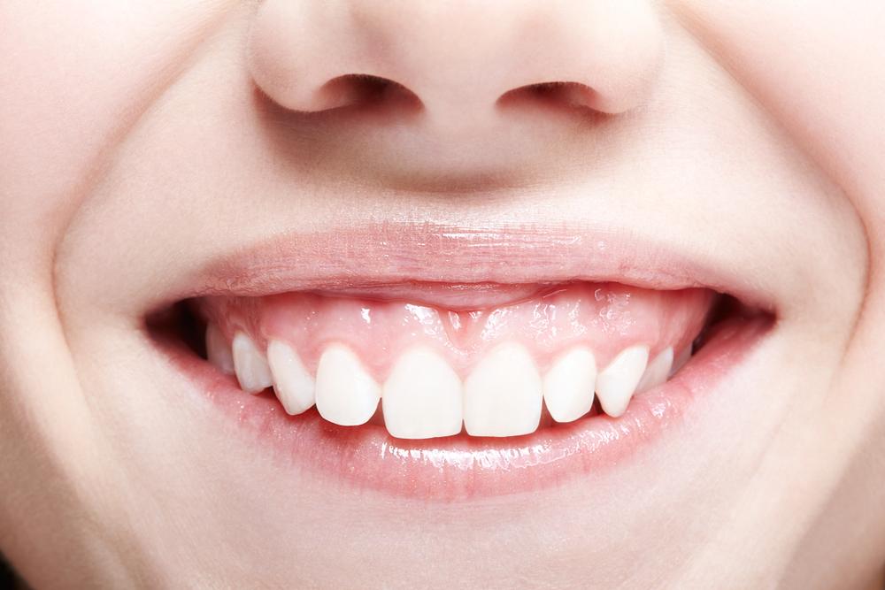 Behandlung bei Zahnfleischrückgang: Welche Kosten entstehen?