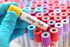 allergietest-kosten