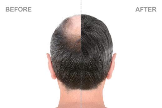 Bei eine männern was deutschland haartransplantation kostet in Haartransplantation Kosten