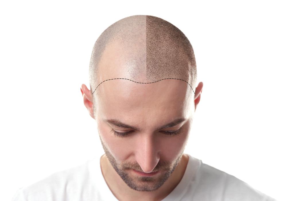 Was kostet eine Haartransplantation