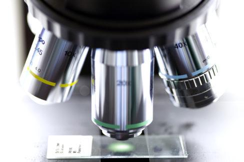 dunkelfeldmikroskopie-kosten