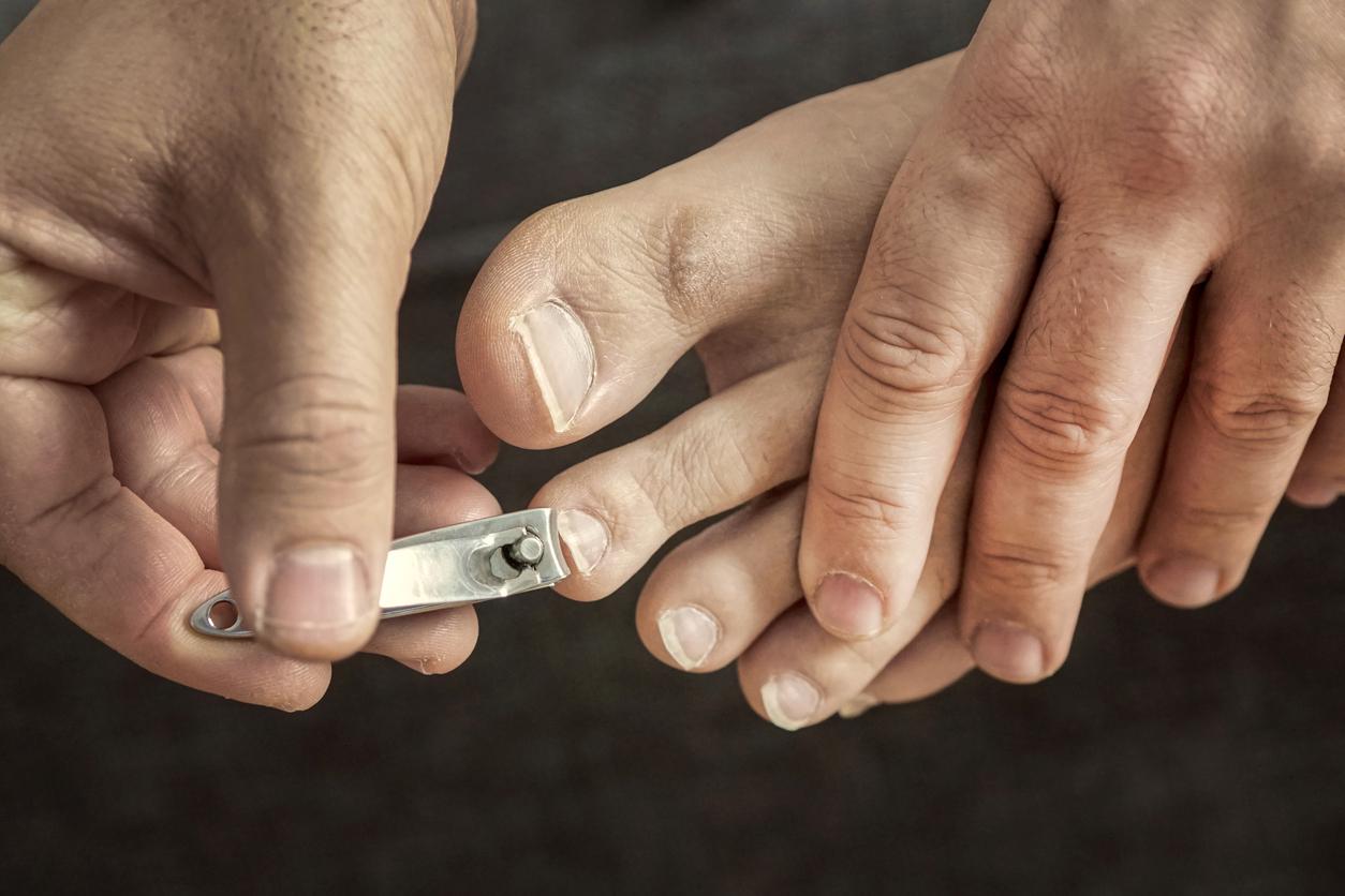 Dauerhafte Nagelkorrektur: Was kostet eine Nagelspange?